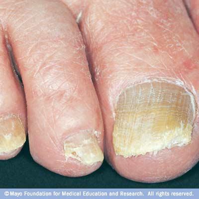 How to get rid of my toenail fungus home