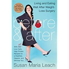 Before & After, Revised Edition: Living and Eating Well After Weight-Loss Surgery