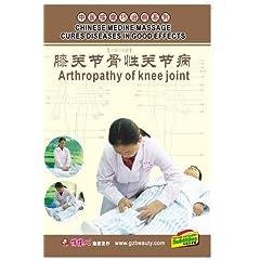 Osteoarthrosis of Knee Joint