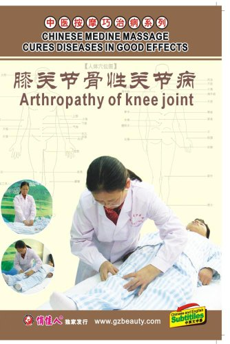 Osteoarthrosis of Knee Joint