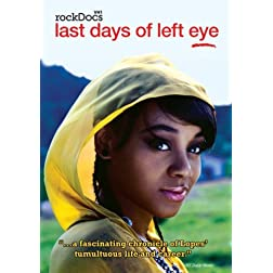The Last Days of Left Eye