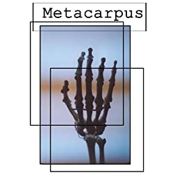 Metacarpus (Institutional Use - University/College)
