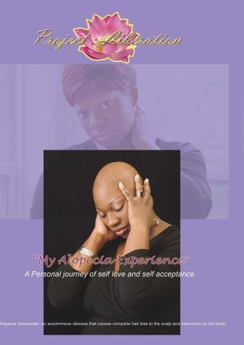 Project Liberation- My Alopecia Experience